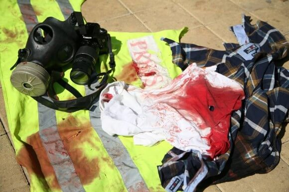 Yasin's clothes after he was shot, covered in blood from his wounds. (Photo: Hamde Abu Rahma)