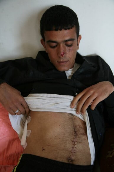 Yasin displaying his wounds, the bandaged bullet wound on his ribs, the scar from surgery done to extract dum dum bullet fragments, and a deep gash on his nose from a .22 caliber sniper bullet.