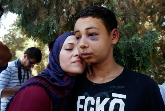 Tarih Abu Khdeir is met by his mother after his release from jail in Jerusalem on Sunday. (Photo: Reuters)