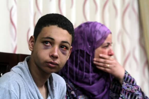 Tarek Abu Khdeir with the mother of murdered Palestinian teen Mohammed Abu Khdeir. (Photo: Issam Rimawi/Anadolu Agency/Getty Images)