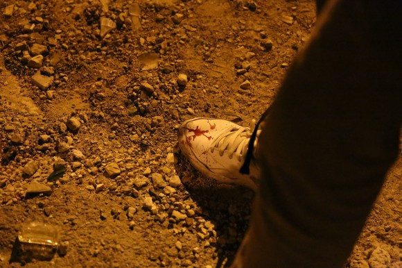 The shoe of a young protester splashed with blood after he helped his wounded friend into the ambulance. (Photo: Kelly Lynn)