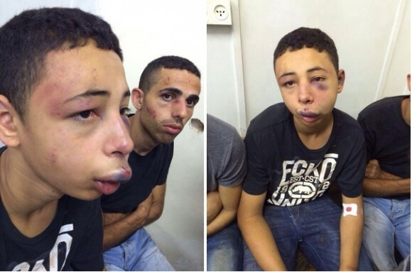 Tarek Abu Khdeir following his injuries. (Photo provided and published with consent from the Abu Khdeir family)