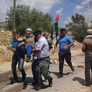 Protestor shot in his leg with live ammunition during protest in West Bank village of Kafr Qaddum. (Photo: International Solidarity Movement)