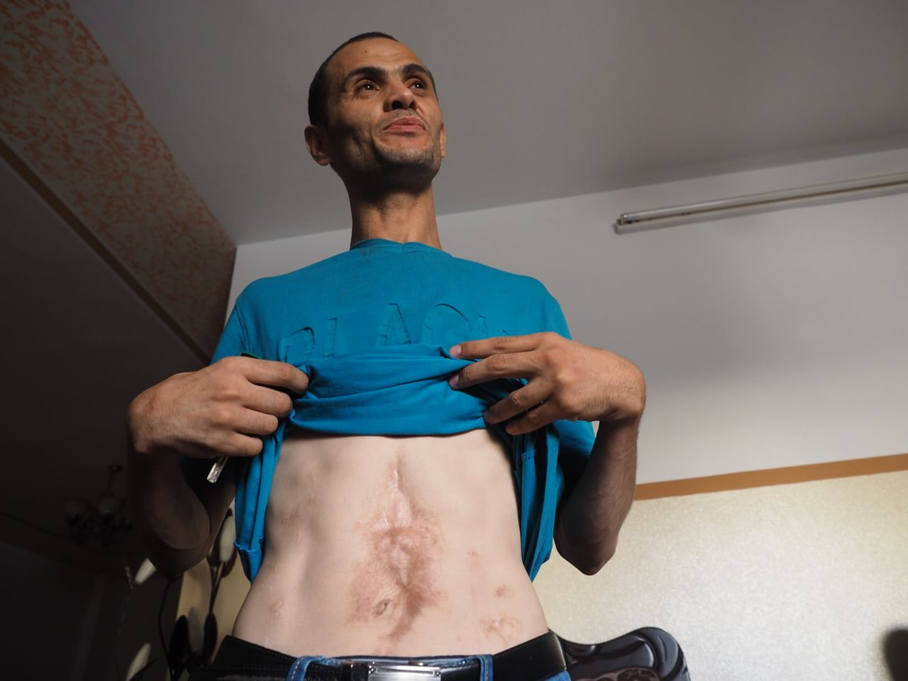 Scars cover Mohammed Zaidan's abdomen from the partially detonated bomb he carried. (Photo: Dan Cohen)