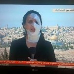 Journalists Hana Mahamaid reports after sustaining injuries caused by the Israeli army while covering clashes near Beit El settlement, outside of Ramallah. (Photo: Facebook)