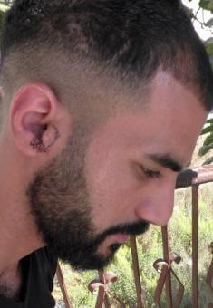 'Alaa Karamah and his injured ear. Photo by Manal al-Ja'bri, B'Tselem, 23 Sept. 2018