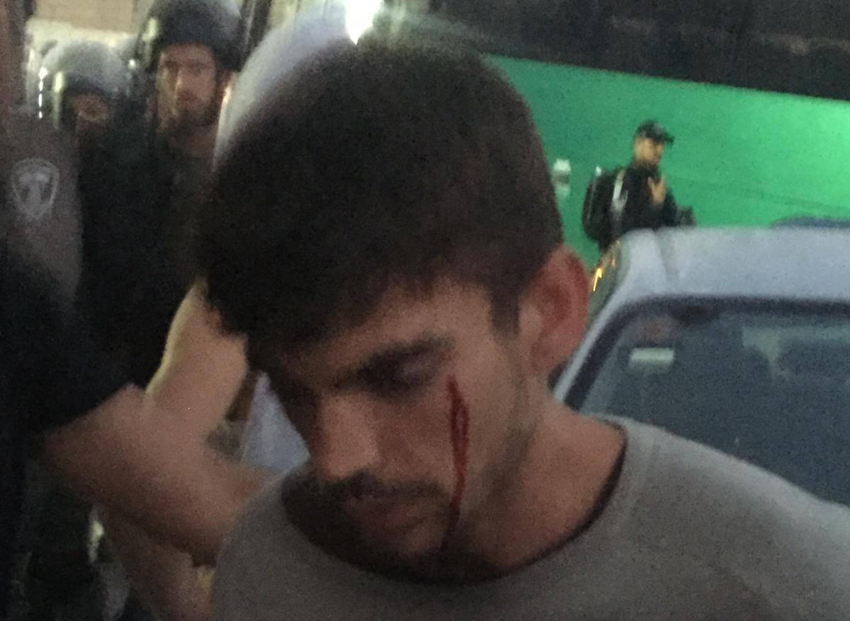 Open wound of Ivan Rivera, a Spanish activist (Photo: ISM)