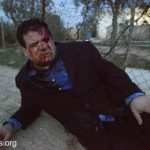 Head of the Joint List Ayman Odeh, injured by Israeli border police during a demonstration against the demolition of the Bedouin village of Umm al-Hiran, outside of Beersheva, Israel, January 18, 2017. Odeh tweeted the foto, shot by Activestills.