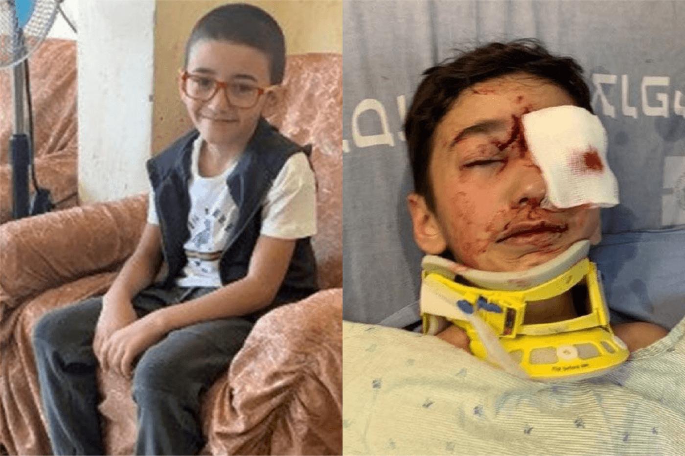 Palestinian boy, 8, loses eye after being shot by Israeli police in Jerusalem – Mondoweiss